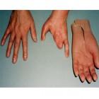 손 의지--수부의수
